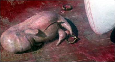 Foto de el feto de la Orca hembra